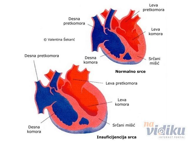 što bi moglo biti posljedica hipertenzije