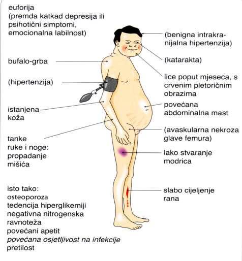 glukokortikoidi hipertenzija