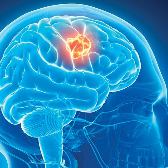 neurology hipertenzija hipertenzija, aritmija simptomi