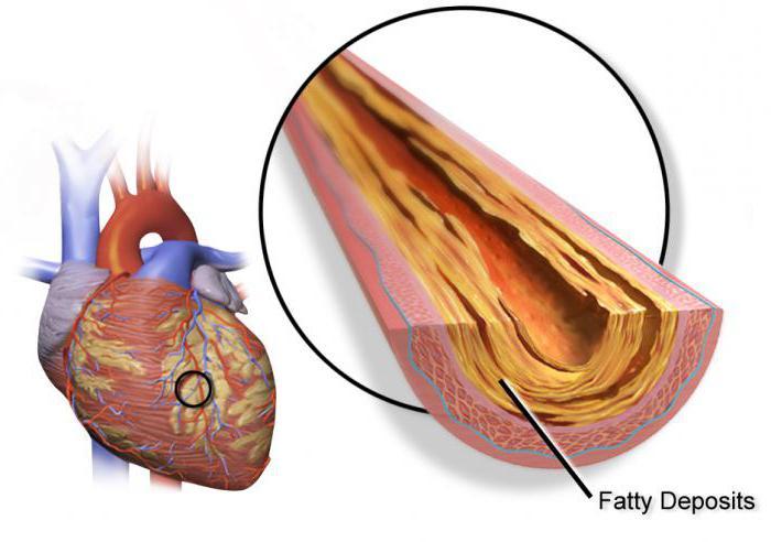 izoket hipertenzija migrene za hipertenziju