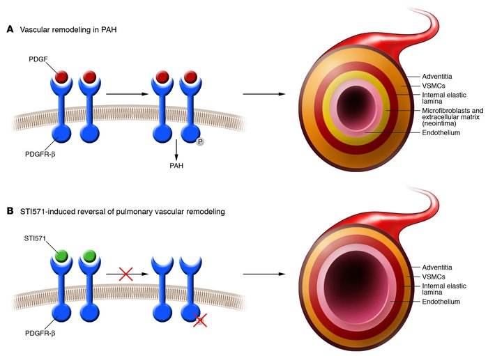 vaskularna hipertenzija)
