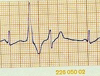 koji se tahikardija i hipertenzija