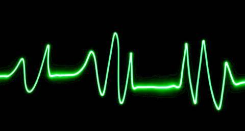 hipertenzija, aritmija simptomi