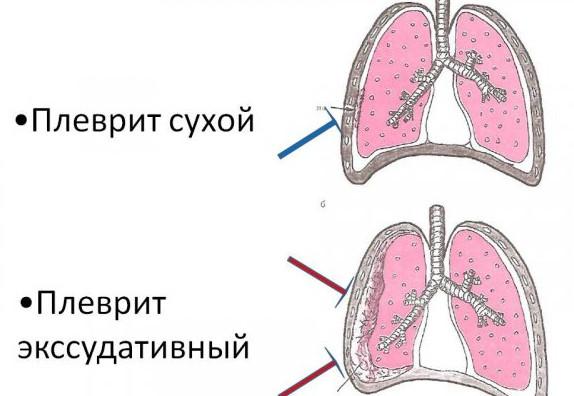 hipertenzija, bol u lopatici