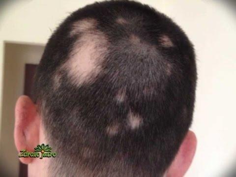 hipertenzija, gubitak kose