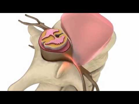 hipertenzija i cervikalni chondrosis