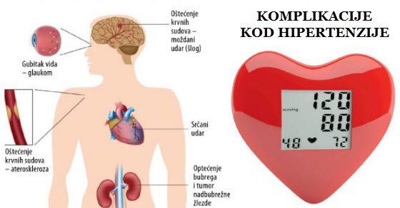 hipertenzije, retine