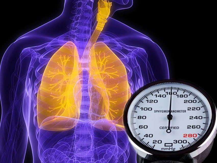 hipertenzija križaljka)