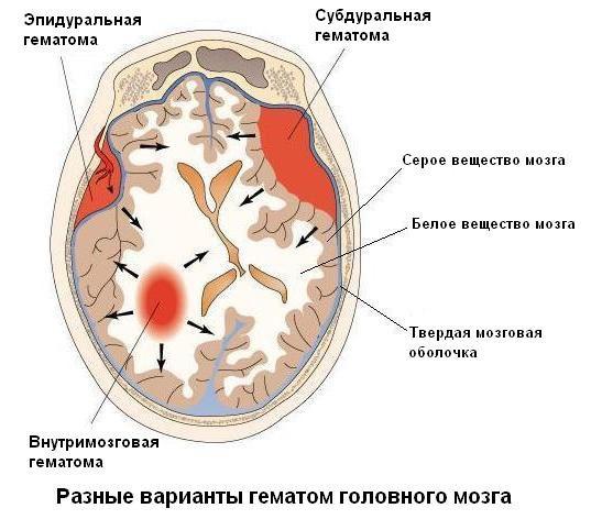hipertenzija na plašt)