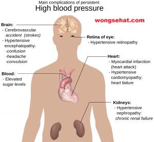 hipertenzija, renalna simptoma terapijski hipertenzija punjenje