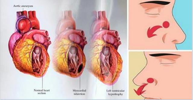 hipertenzija tretira kao da ne može biti