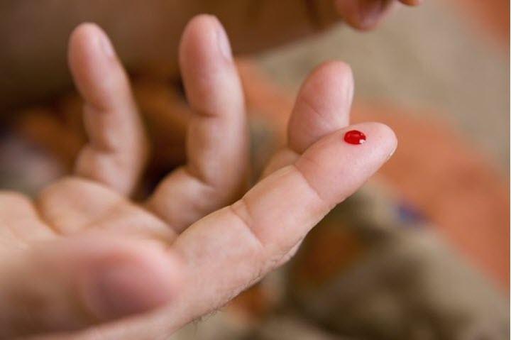 Što je eritremija i kako je to opasno?