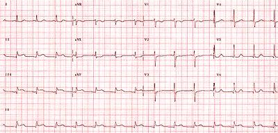 hipertenzije, bradikardija