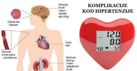 hipertenzije, gubitak vida)
