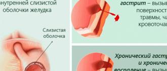 Liječenje hipertenzije u hipotiroidizmu