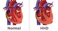 HRT: Nove smjernice kardiologa: Hipertenzija već od /80