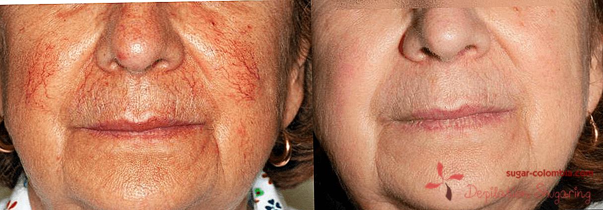 kako da biste dobili osloboditi od crvenih lica u hipertenzije