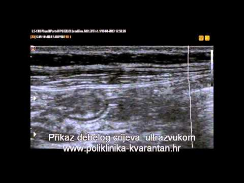 kharkov liječenje hipertenzije
