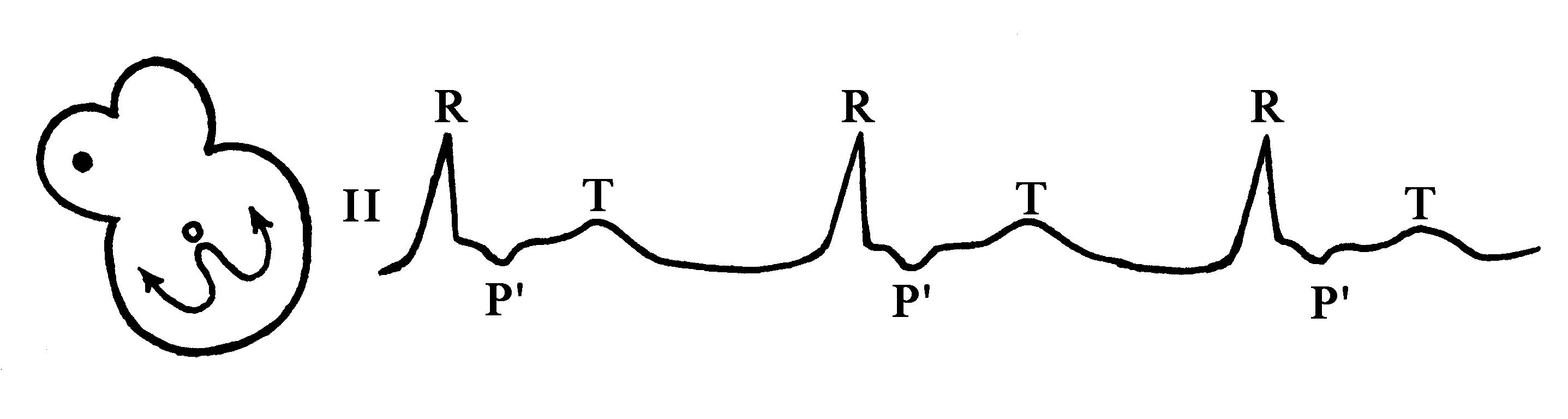 kokarboksilaza i hipertenzija)