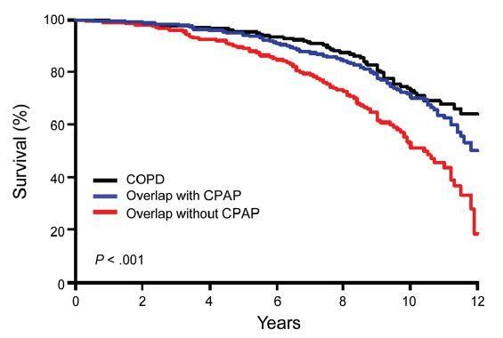 Plućna hipertenzija
