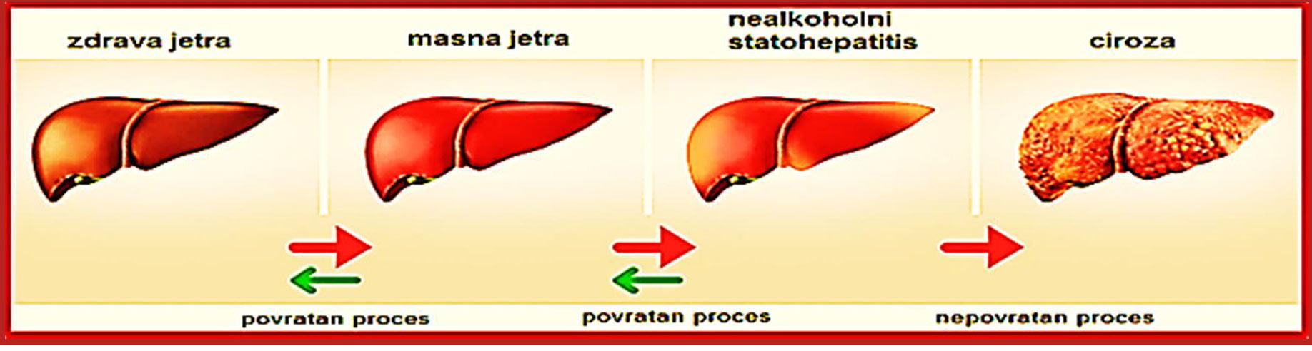 masne jetre i hipertenzije izoket hipertenzija