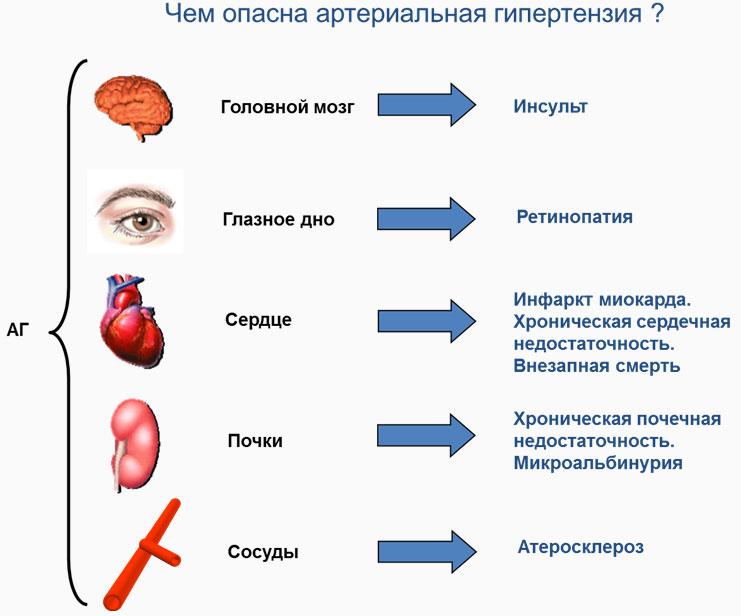 rizika za razvoj hipertenzije 2st liječenje hipertenzije