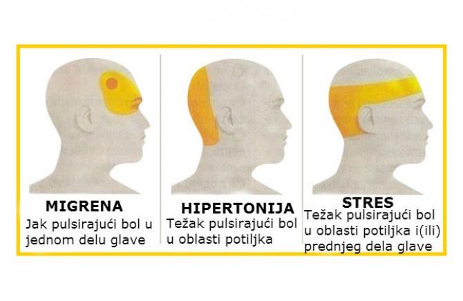 Hipertenus mozga. Kako pravovremeno prepoznati i pobijediti bolest