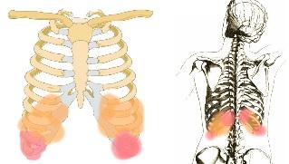 Prostatitisa prigovaralo bol na lijevoj strani