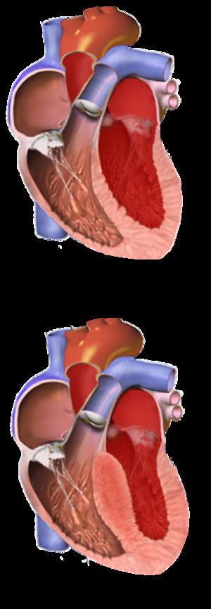 rusa liječenje hipertenzije