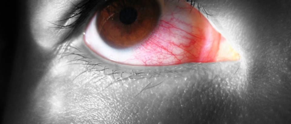 što uzrokuje visok krvni tlak u očima