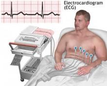 znakovi povišenog krvnog tlaka u ekg)