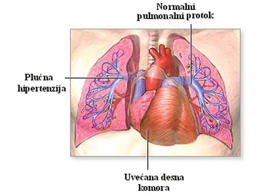 posljedice hipertenzije, plućne cirkulacije