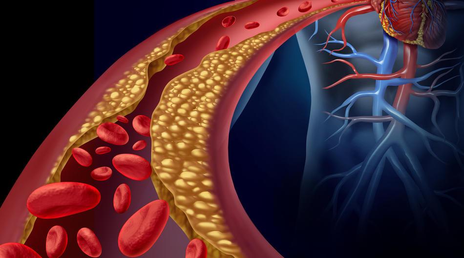 zastoja hipertenzija)