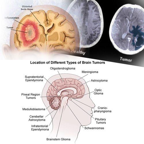 Intrakranijalna hipertenzija: što je to i kako je opasno? - Dijabetes February