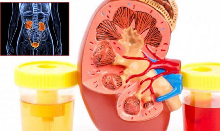 hipertenzija crvenih krvnih stanica u urinu poligraf hipertenzije