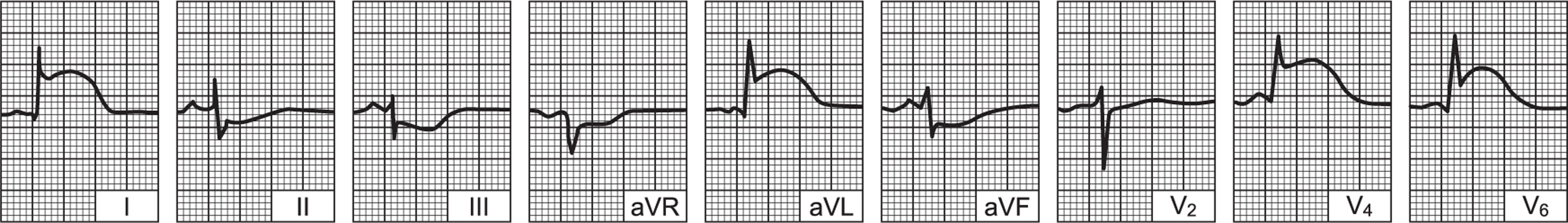 infarkt kao komplikacija hipertenzije