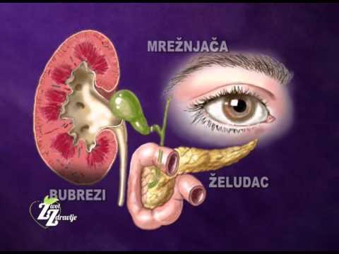 Kako liječiti hipertenziju