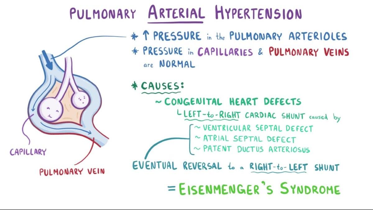 posljedice hipertenzije, plućne cirkulacije)