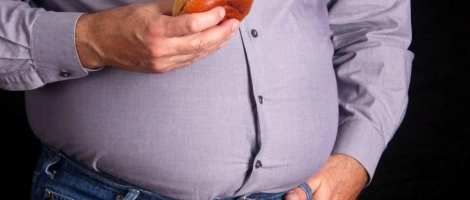 posljedice pretilosti hipertenzije)
