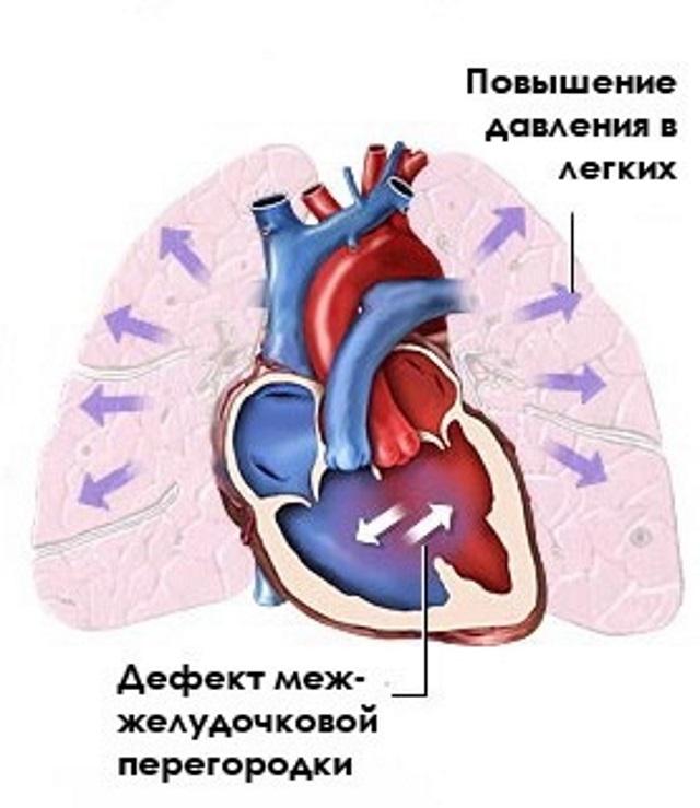 što je primarna plućna hipertenzija)