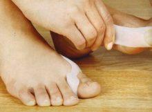 Zašto nastaje bol u peti i kako ga liječiti? - Dermatitis February