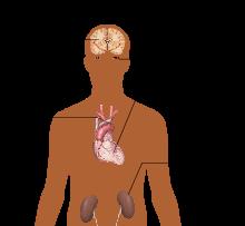 ciljne organe hipertenzija mozga