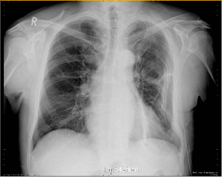 hemoptiza hipertenzije)
