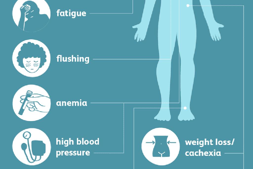 maligna hipertenzija i simptomi