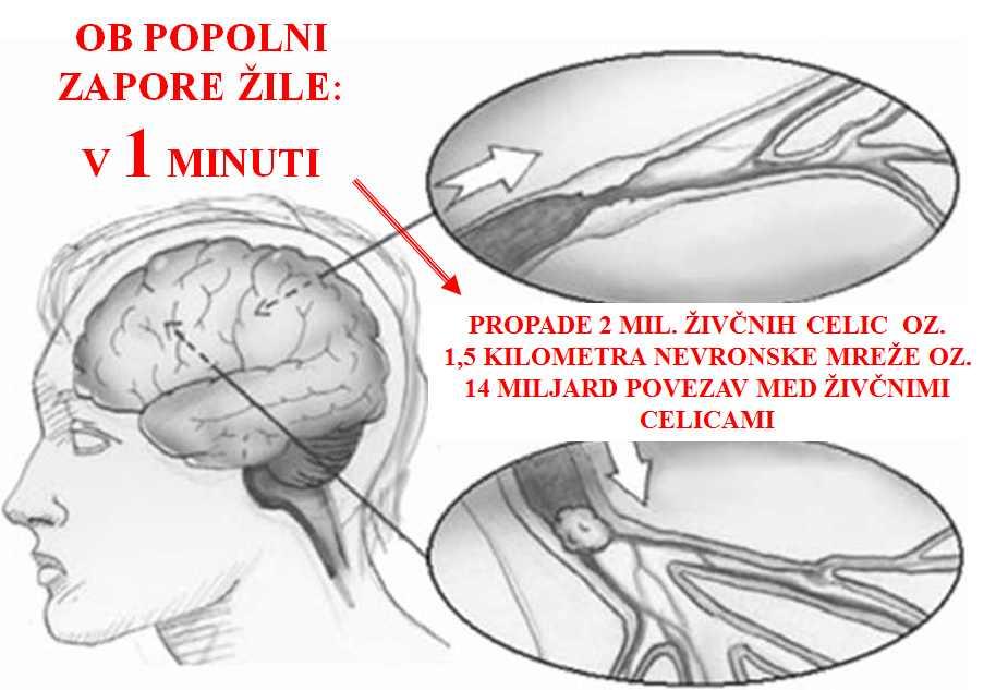 hipertenzija krvne žile