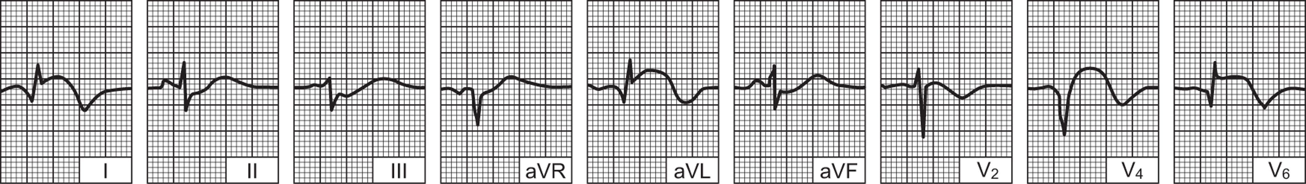Začepljenje krvnih žila oko srca (koronarna bolest srca) – rizici, simptomi i liječenje