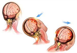 što je traumatsko mozak hipertenzija