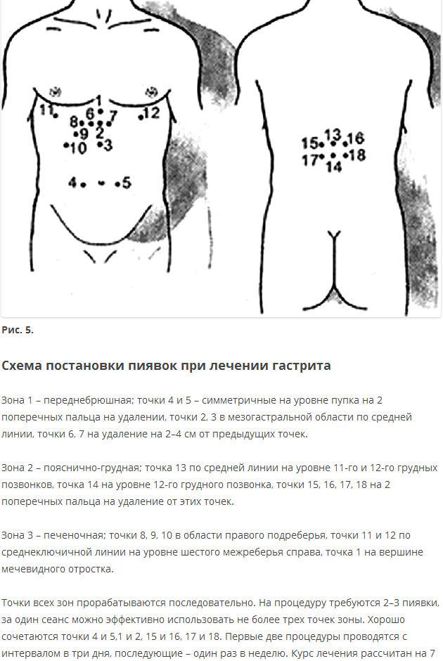 formulacija u pijavica hipertenzije)