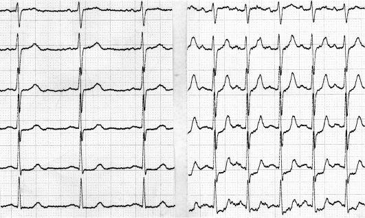 kitosan hipertenzija hipertenzija otupio rozikast