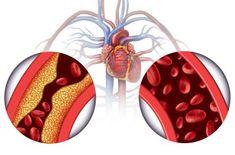 Mjerite krvni tlak svaka tri mjeseca čak i ako ste zdravi | 24sata